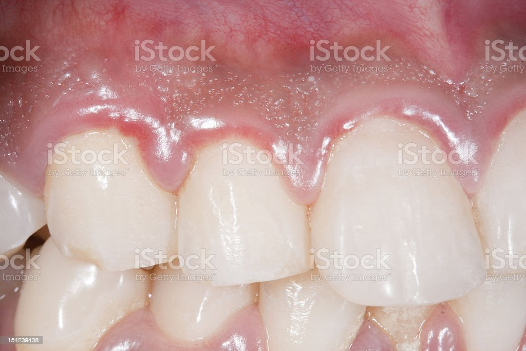 Gingivitis stock photo
