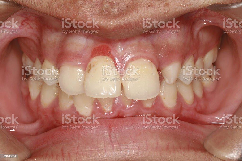 gingivitis royalty-free stock photo