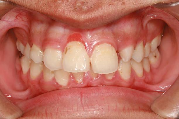 gingivitis stock photo