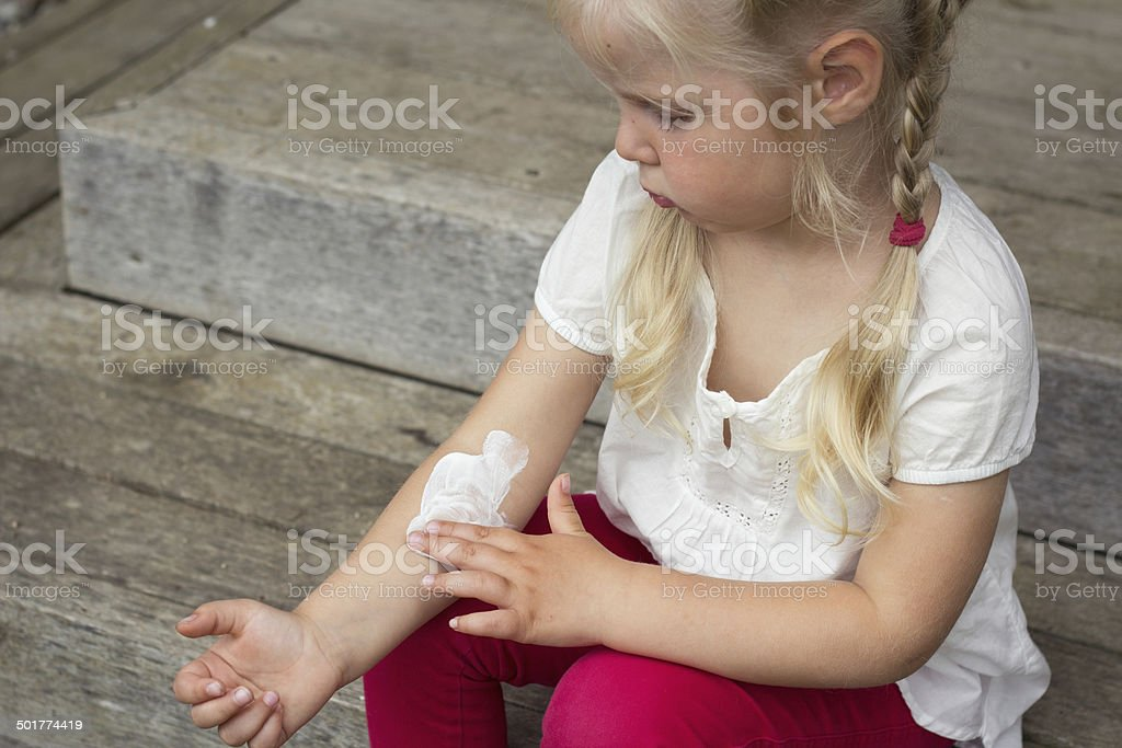 Girl applying dermatology cream on skin stock photo