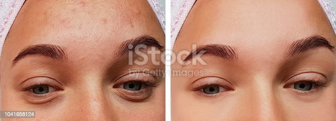 istock girl eye treatment, before and after procedures, acne 1041658124