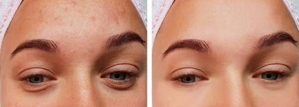 flicka ögonbehandling, före och efter förfaranden, akne - filler swollen bildbanksfoton och bilder