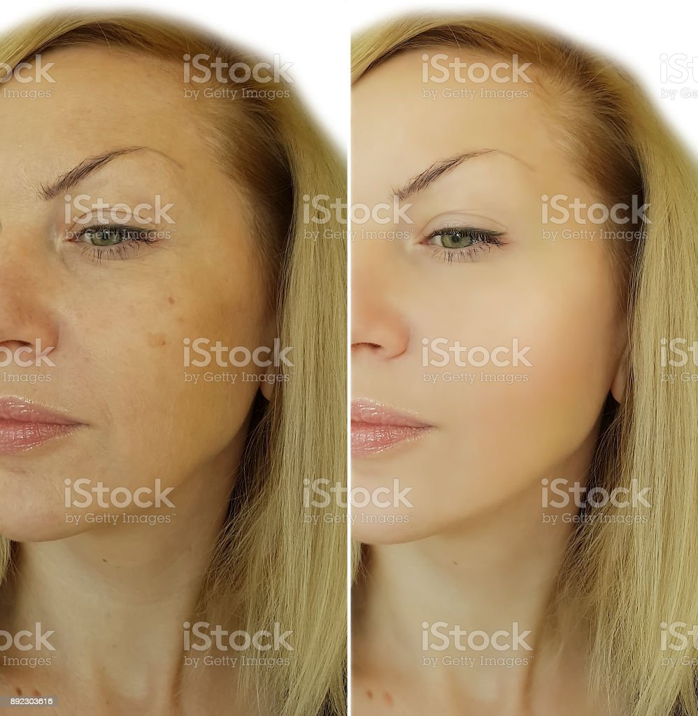 girl face wrinkles before and after stock photo