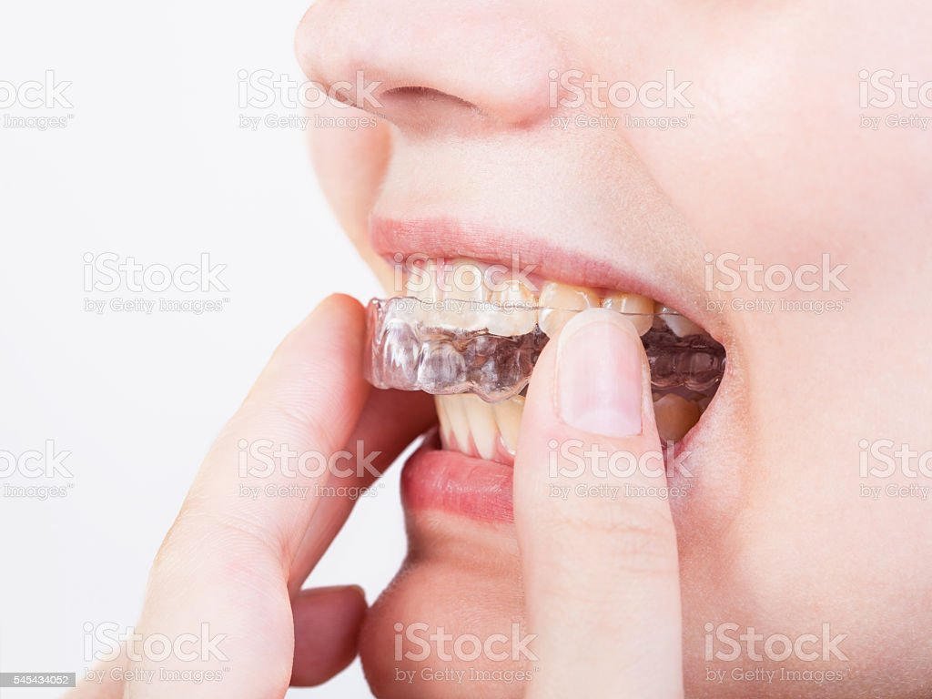 girl fixes transparent aligner stock photo