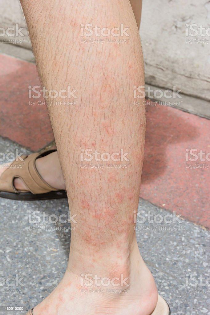dermatitis en piernas imagenes