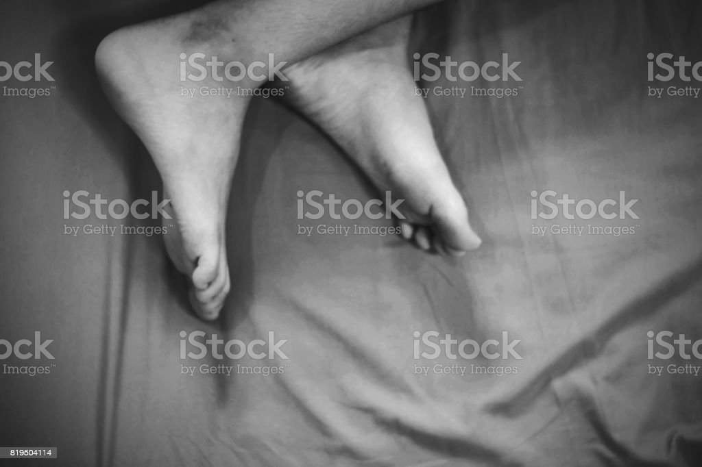 girl on bed with bruises on leg stock photo