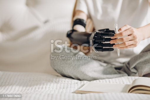 istock girl performing catching activities with a prosthetic limb 1176972650