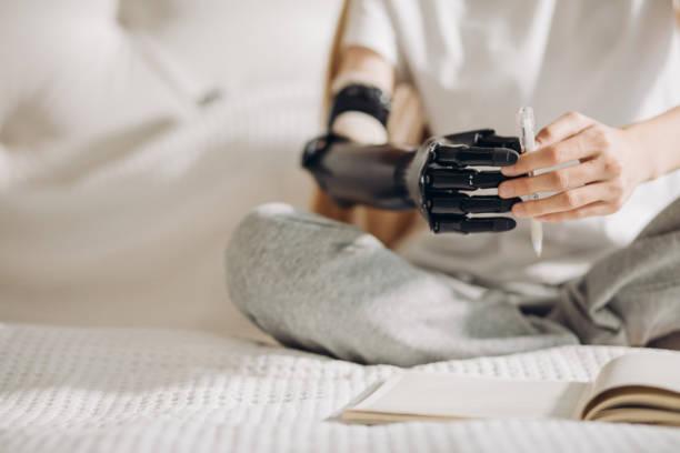 義肢でキャッチング活動を行う女の子 - 四肢 ストックフォトと画像