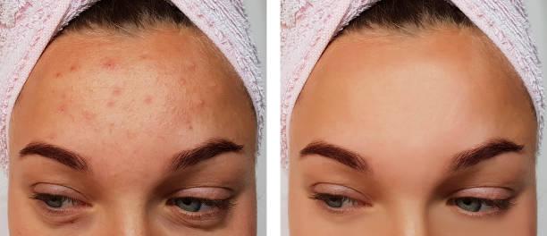 mädchen-pickel auf der stirn vor und nach dem eingriff - leberfleck hautmerkmal stock-fotos und bilder