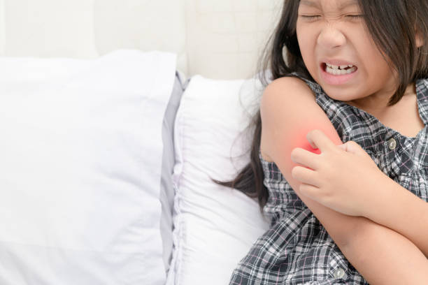 girl scratch the itch with hand , stock photo