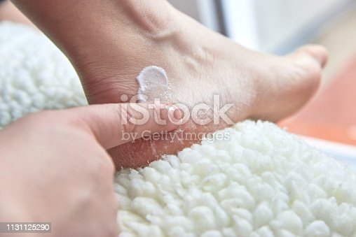 Girl smears moisturizing cream dry feet covered with cracks