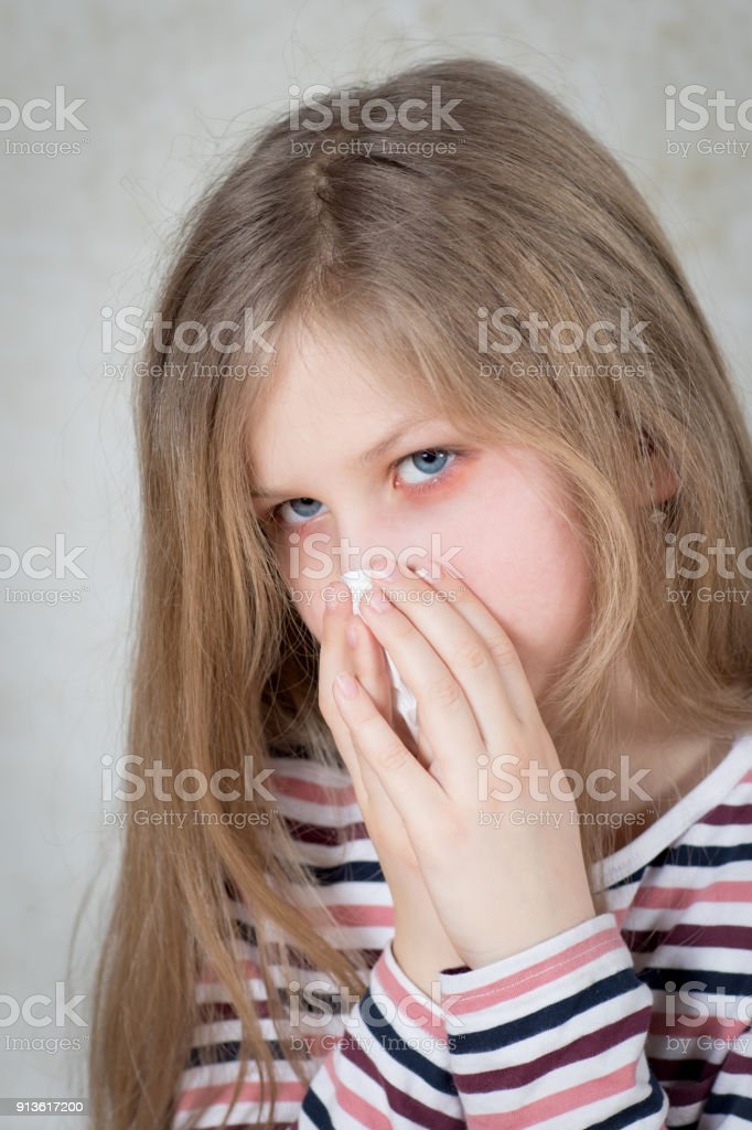 Hay fever with sore eyes and sneezing