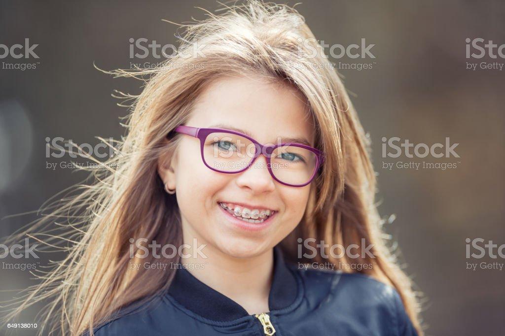Garota. Adolescente. Pré-adolescente. Garota com óculos. Menina com aparelho de dentes. Jovem bonita caucasiana loira usava aparelho de dentes e óculos - foto de acervo