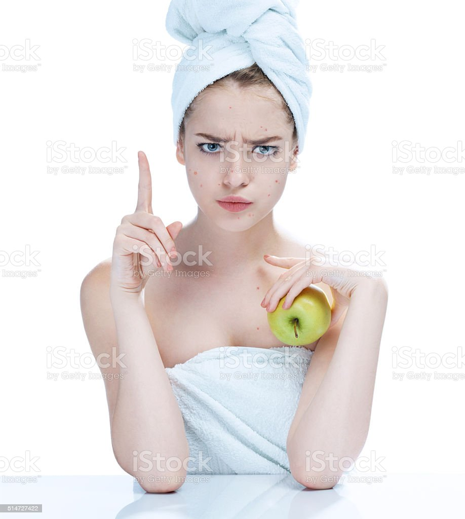 Girl with a pimply face holding apple. stock photo