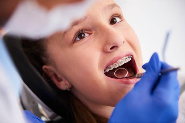 mädchen mit zahnspangen während einer routineuntersuchung, zahnarztuntersuchung - kieferorthopäde stock-fotos und bilder