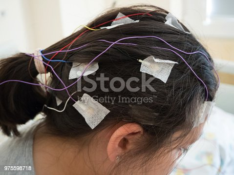 istock Girl with EEG electrodes attached to her head for medical test 975598718