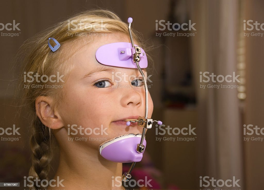 Girl with orthodontics head gear stock photo