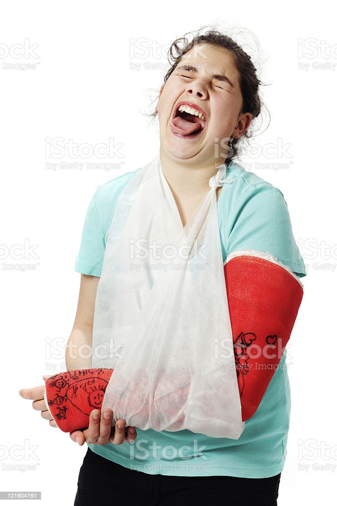 Girl with plaster cast and sling stock photo