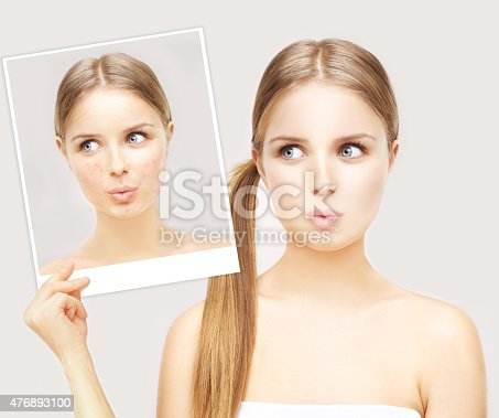 Portrait of beautiful teenage girl with problem and clear skin.Girl without and with makeup