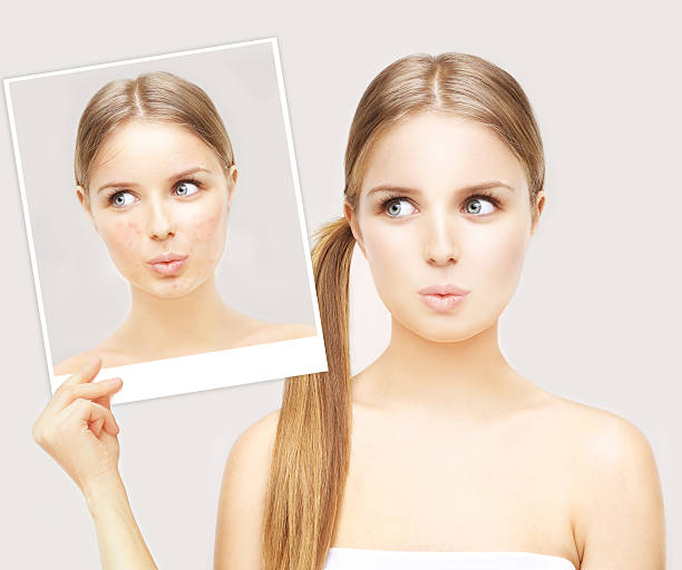girl with problem and clear skin. - retouched image stock photos and pictures
