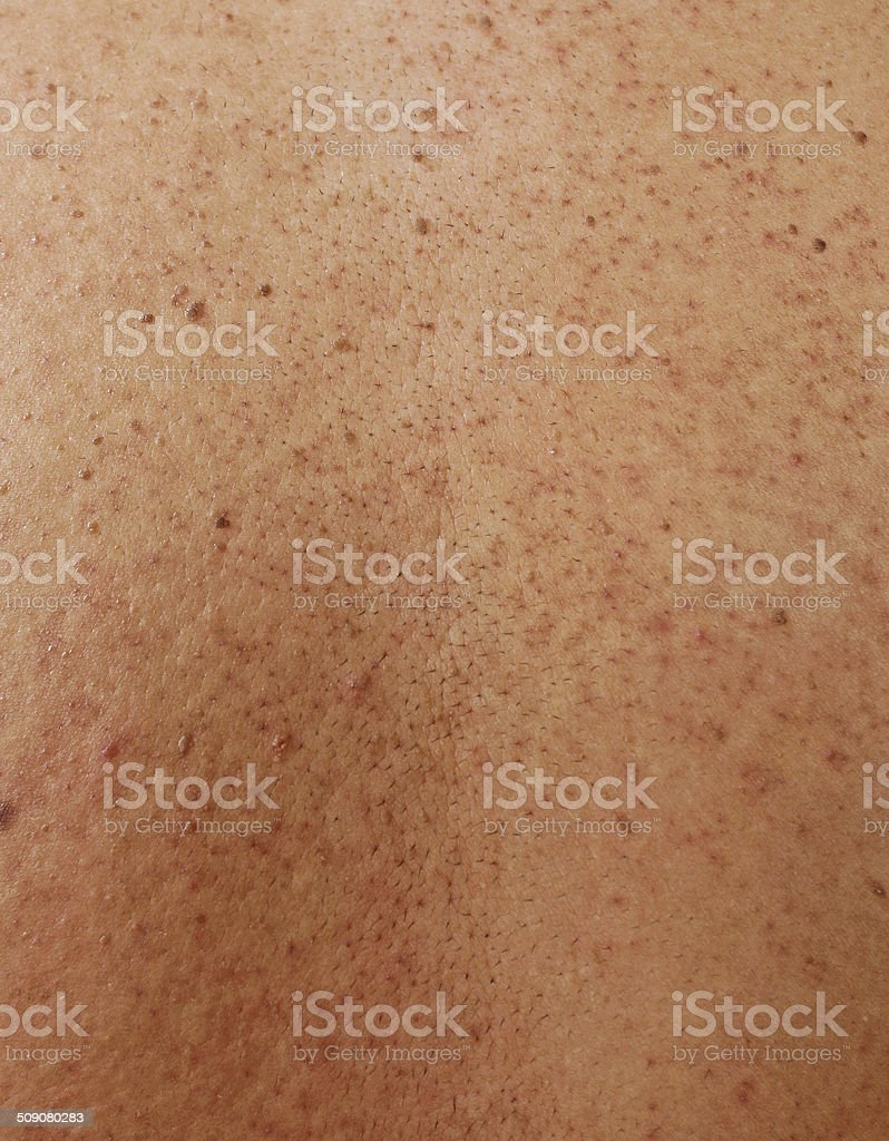 Girl with problematic skin and acne scars in the back stock photo