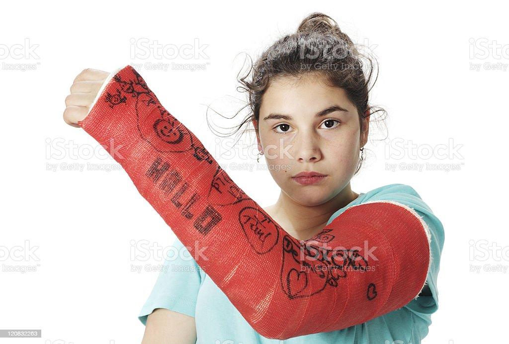 Chica con rojo escayola de yeso - foto de stock