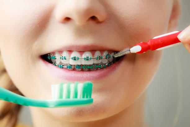 Mädchen mit den Zähnen Hosenträger mit interdental und traditionelle Pinsel – Foto
