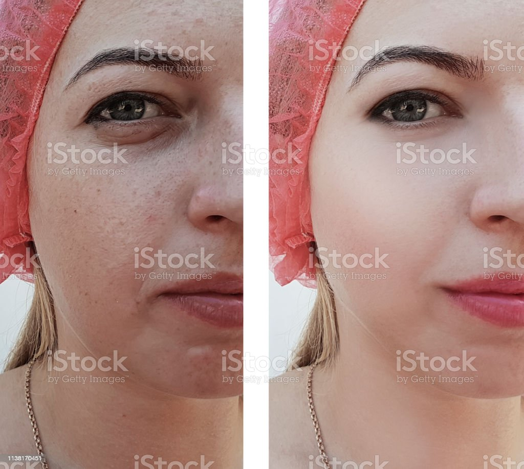 girl wrinkles bags of eyes before and after procedures stock photo