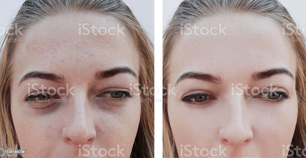girl wrinkles eye bags before and after procedures stock photo