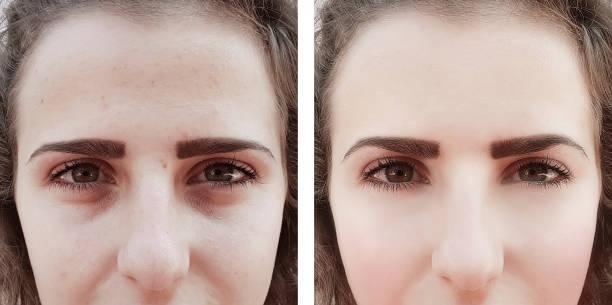 flicka rynkor ögon före och efter förfaranden väskor - filler swollen bildbanksfoton och bilder