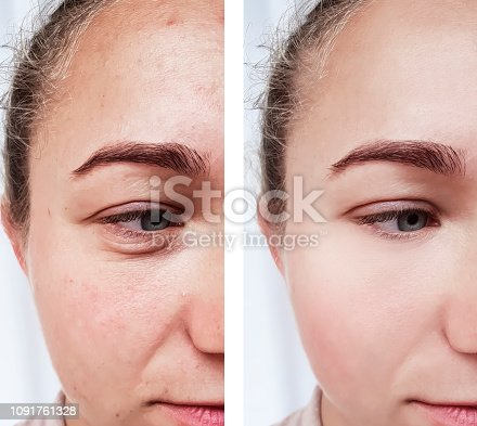 istock girl wrinkles eyes before and after procedures 1091761328