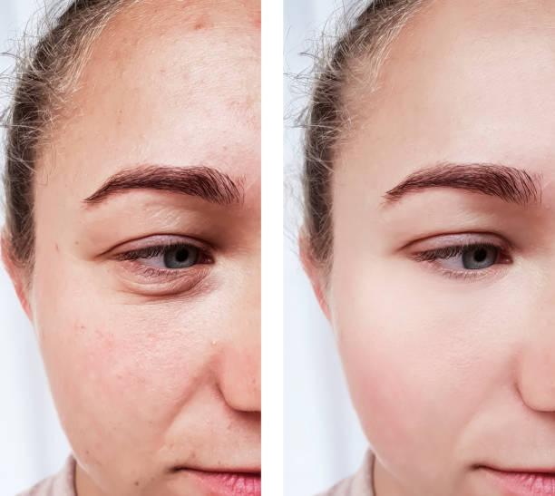 flicka rynkor ögon före och efter förfaranden - filler swollen bildbanksfoton och bilder