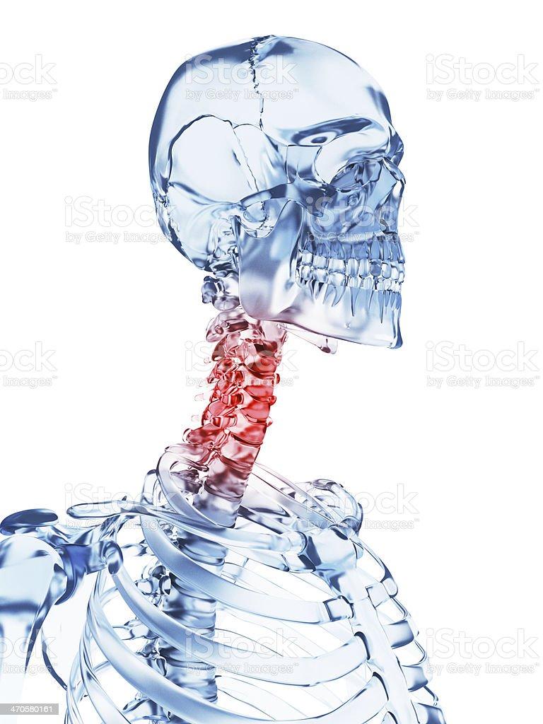 Esqueleto De Vidrio Dolor De Cuello - Fotografía de stock y más ...