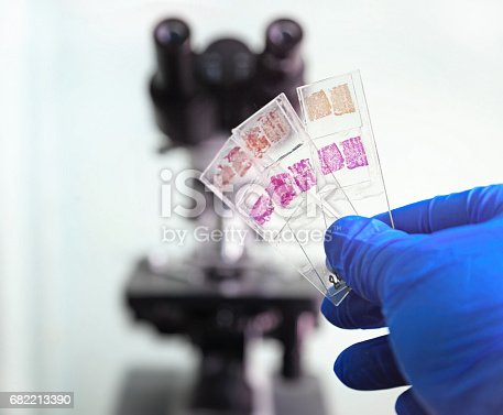Glass slides in the laboratory. Hand in blue glove holding glass organ samples. Histological examination. The microscope in the background blurred. Pathologist at work.