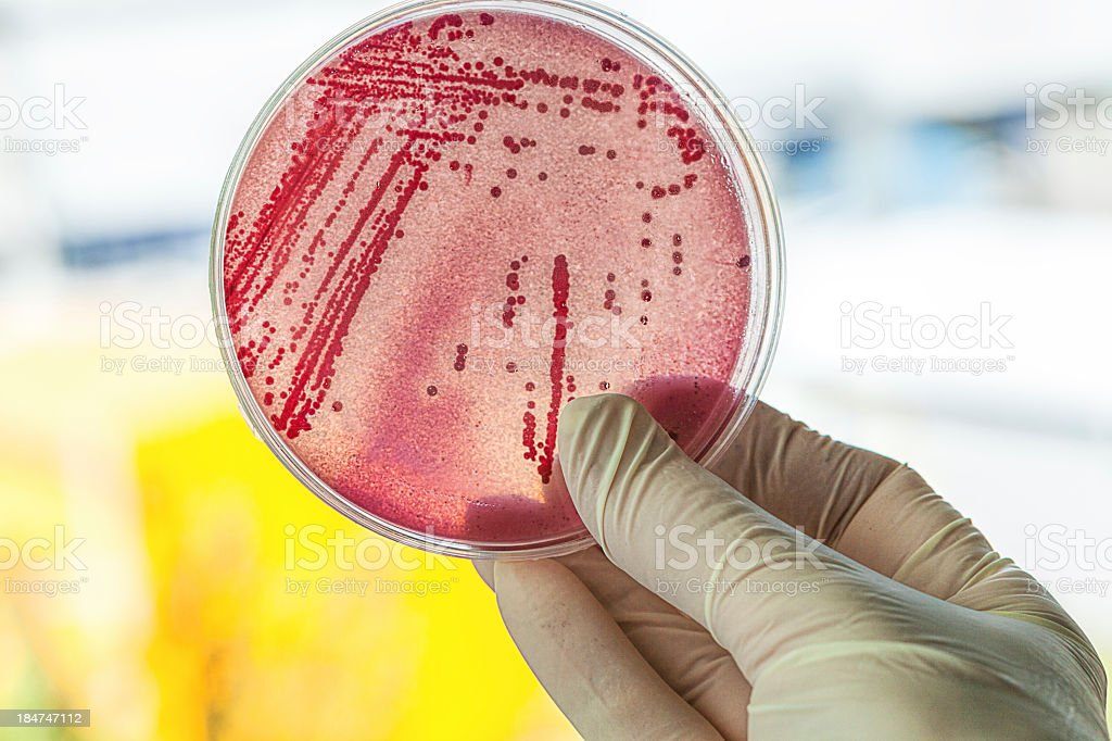 A gloved hand holding a Petri dish of bacteria stock photo
