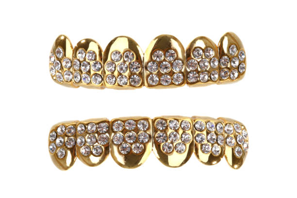 Gold Grill Gold teeth with diamonds. gold teeth bling stock pictures, royalty-free photos & images