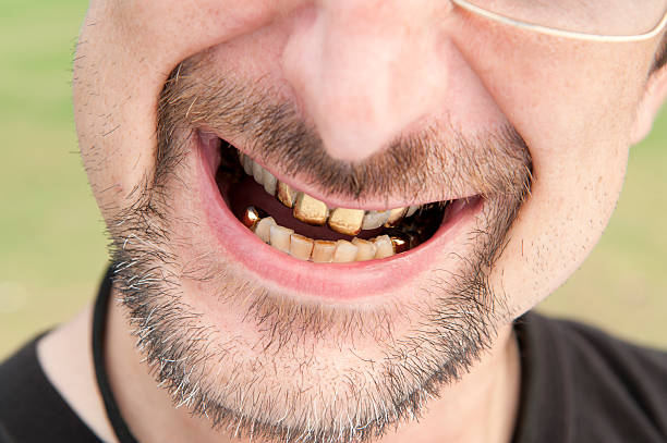 gold teeth - gold tooth stock photos and pictures
