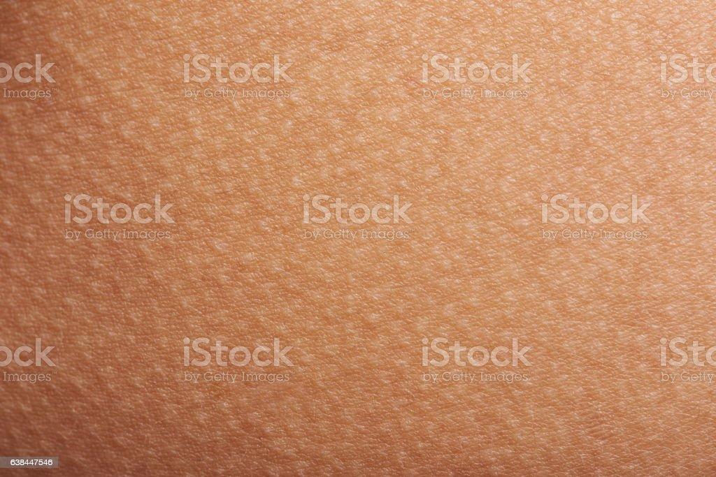 goose bumps on human skin стоковое фото