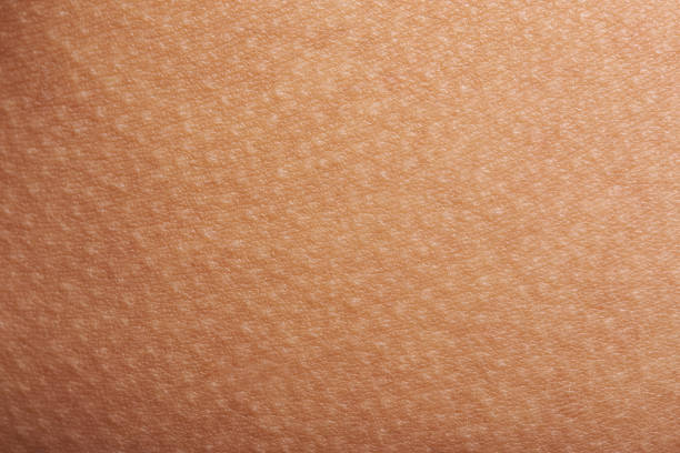 goose bumps on human skin Goose bumps on human skin closeup. Tecture of skin with goose bumps human skin stock pictures, royalty-free photos & images