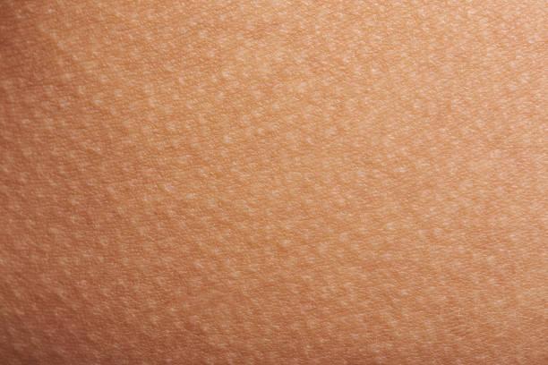 goose bumps on human skin - menselijke huid stockfoto's en -beelden