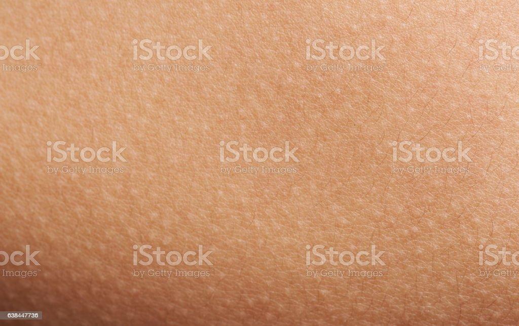 Goose bumps on human skin stock photo