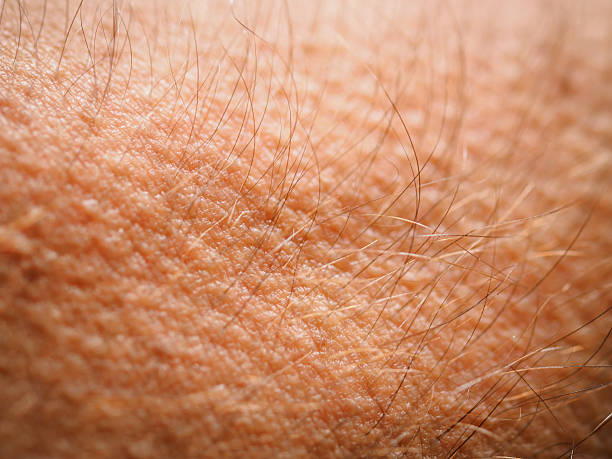 Goose bumps Goose bumps on skin goosebumps stock pictures, royalty-free photos & images