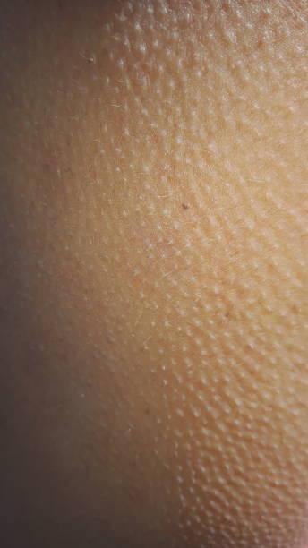 Goose pimples on human arm Goosebumps closeup goosebumps stock pictures, royalty-free photos & images