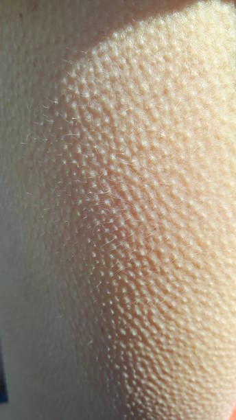 Goosebumps closeup Goosebumps closeup goosebumps stock pictures, royalty-free photos & images