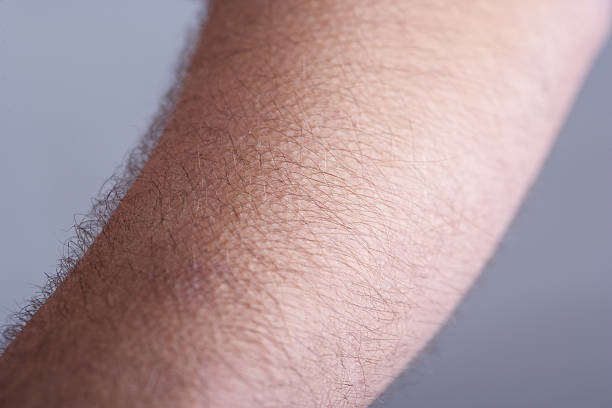 Goosebumps on hairy man's arm male arm with goosebumps goosebumps stock pictures, royalty-free photos & images