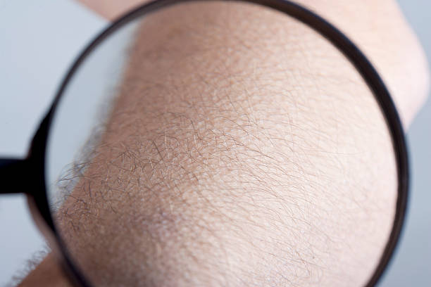 goosebumps under loupe Examining goosebumps of the forearm of a young man (25 years) with a loupe. View through the loupe. goosebumps stock pictures, royalty-free photos & images