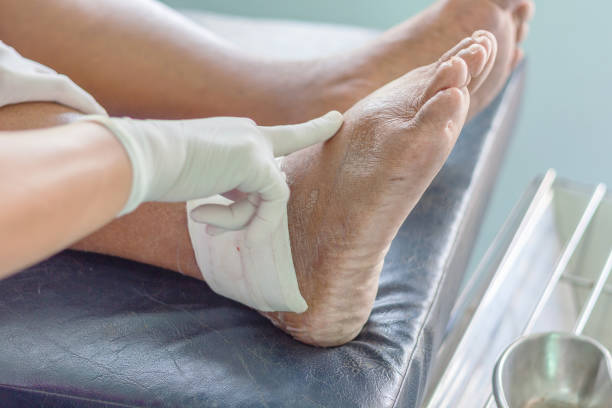 gout ankle wound of ankle gout patient wound stock pictures, royalty-free photos & images