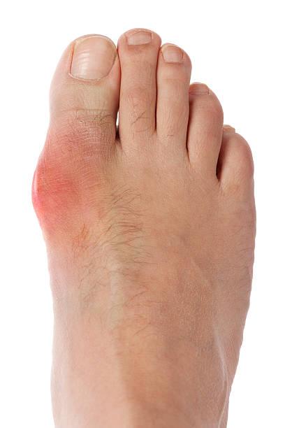 gota cuadrados - enfermedades de los pies fotografías e imágenes de stock