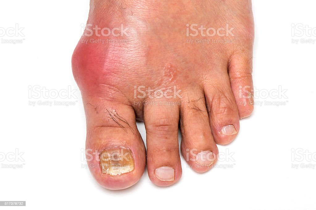 Gout Foot stock photo