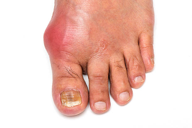 Gout Foot Foot infected with Gout and Fungus Toenail gout stock pictures, royalty-free photos & images